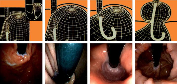 Endoskopija4