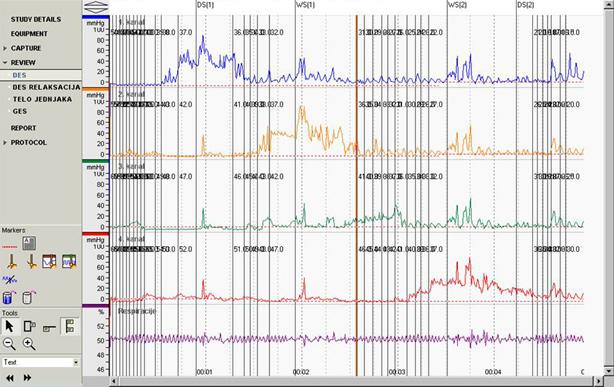 Manometrija hipertenzivnog DES-a kod ahalazije