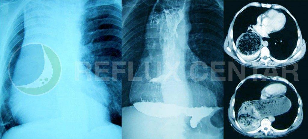 Radiografija grudnog koša, radiografija sa barijumom i CT kod ahalazije tipa sigmoidnog jednjaka