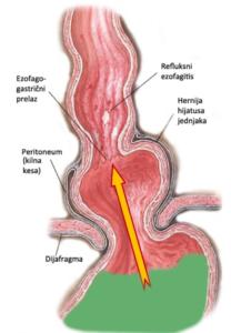 Hernija hijatusa jednjaka, refluks i erozivni ezofagitis